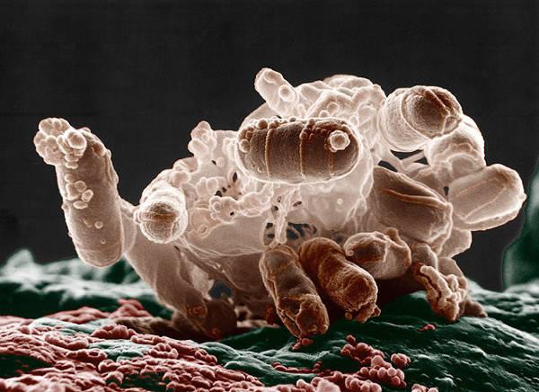 E coli transportado por formiga | Você deve Dedetizar as Formigas